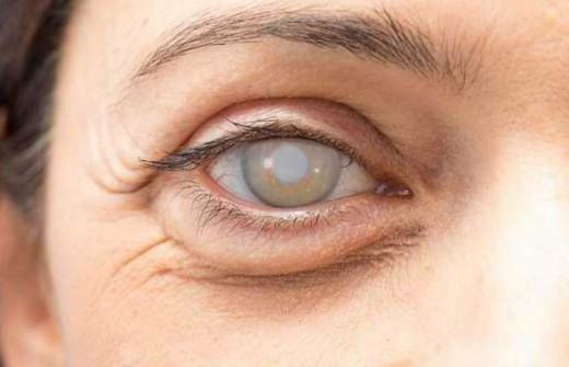 Cataract Information in Marathi