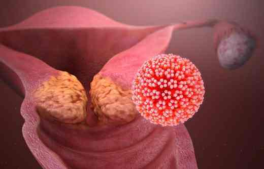 Symptoms, Causes, Diagnosis & Treatments of Cervical cancer in Marathi language.